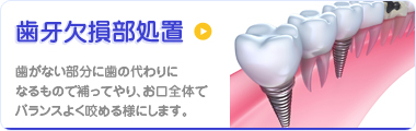 歯牙欠損部処置 歯がない部分に歯の代わりになるもので補ってやり、 お口全体でバランスよく咬める様にします。