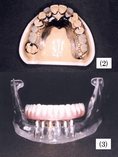 歯牙欠損部処置とは